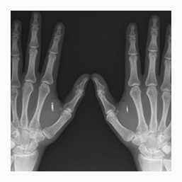 X-Ray Negative Services in Oxfordshire UK